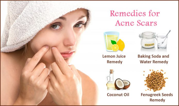 Remedies for Acne scars, acne, skin care, healthy skin