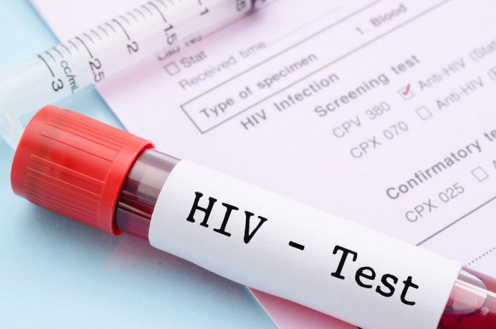 HIV/AIDS infection stages, HIV Infection HIV Test